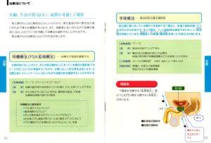 前立腺癌手術療法