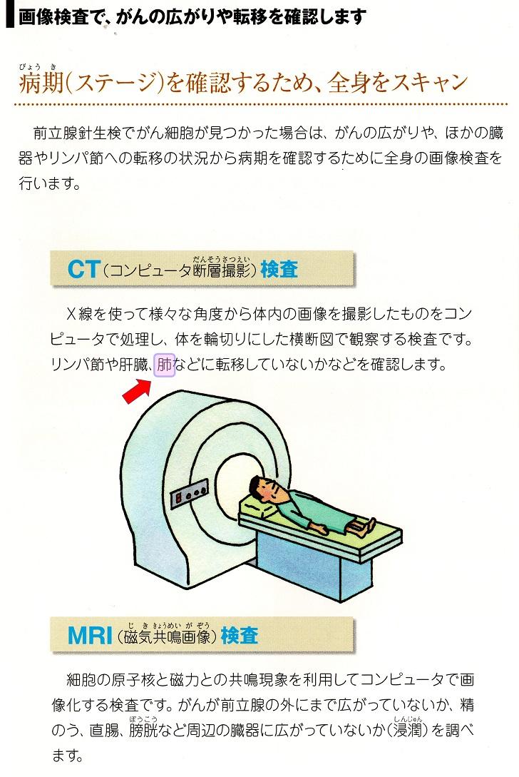 転移検査_04
